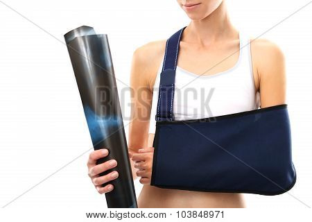 A woman with a broken arm in a sling holding a hand a radiograph