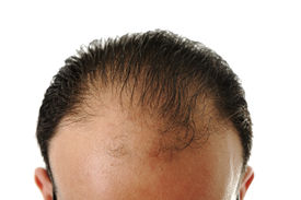 pic of male pattern baldness  - Man loosing hair - JPG