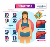 Hepatitis C Vector Illustration. Labeled Viral Infection Explanation Scheme. Liver Inflammation With poster