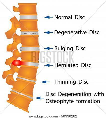 Condiciones de la columna vertebral