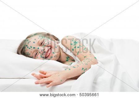 sick girl smile in white bed