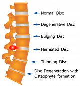 stock photo of spinal disc  - Spine conditions - JPG