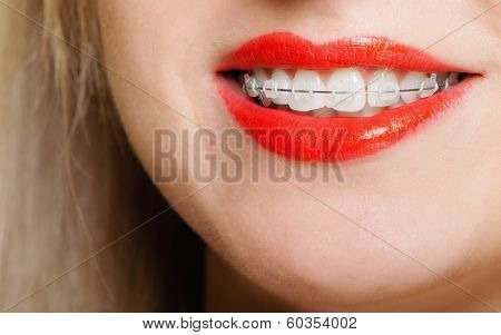 Smiling Girl With Braces Face Part Teeth Straighten, Tooth Hygiene