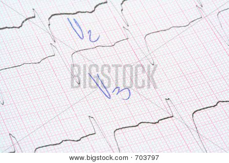 ECG Graph With Doctor Notes