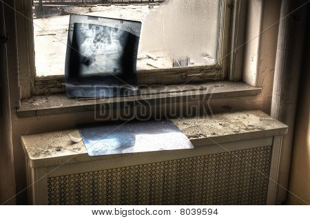 X-Ray in Window
