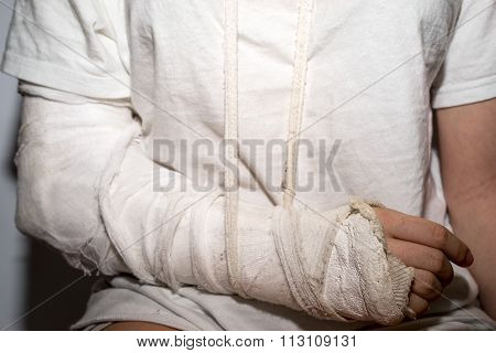 Woman With Broken Arm On A Dirty White Plaster