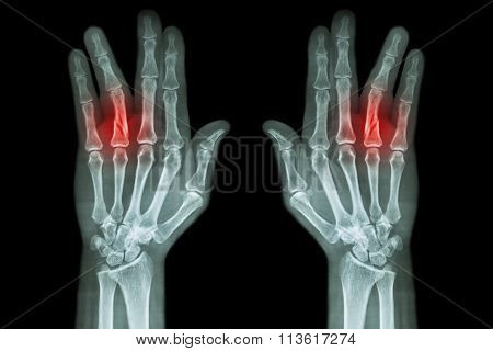 Fracture Shaft Of Proximal Phalange Of Ring Finger ( Film X-ray Both Hand Ap )