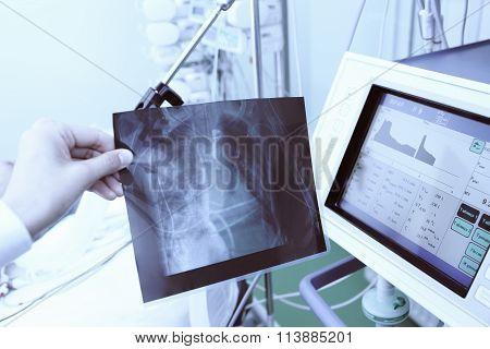 X-ray Of Patient In Doctors Hand