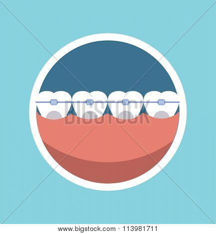 Tooth braces vector illustration. Dentist braces tooth care vector. Dental care, tooth care tools, doctor office, tooth oral braces. Dental tooth icons vector illustration. Dental care background