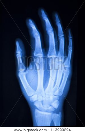 Hand Finger Thumb Hospital Xray Scan