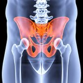 image of coccyx pain  - male pelvis under the X - JPG