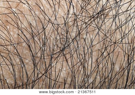 Close up on human hair