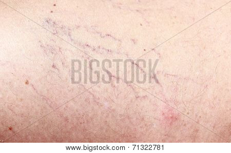 Broken Capillaries Closeup