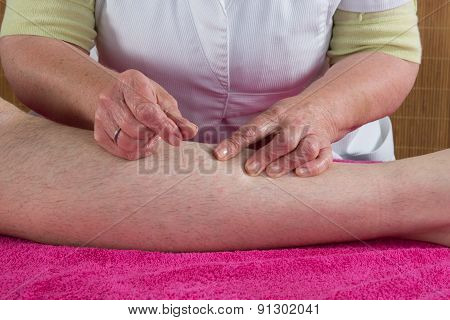 Close Up Of Woman's Hands Doing Acupuncture