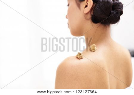 Moxibustion acupuncture needles heat on woman shoulder