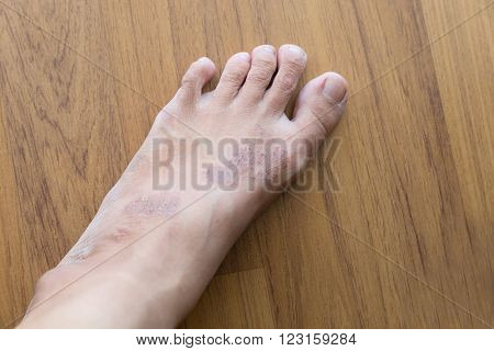 itchy rash eczema on woman skin foot