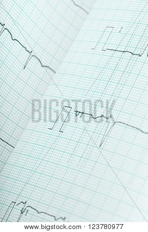 The ECG macro health care background image