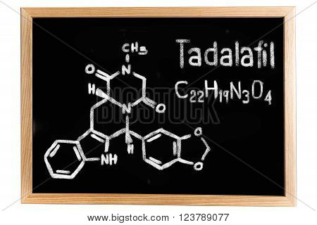 Blackboard with the chemical formula of Tadalafil