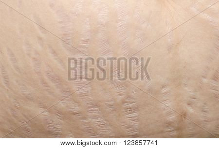 Closeup stretch marks at asian woman belly