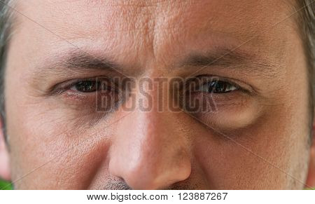 One Eye With Conjunctivitis