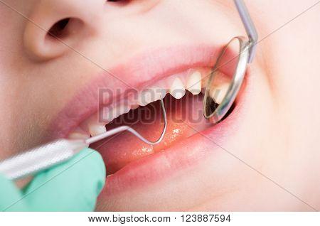 Closeup of kid mouth with mirror at dentist. Boy teeth periodic dental checkup