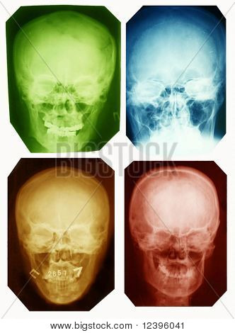 skull collection colorad