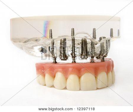 modelo de implantação de dentes
