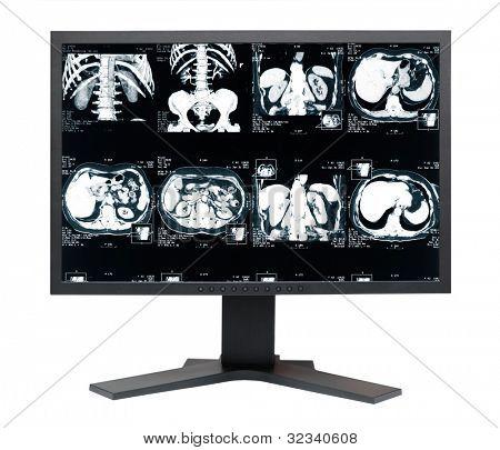 Medicalmonitor. MRI tomogram of human kidney