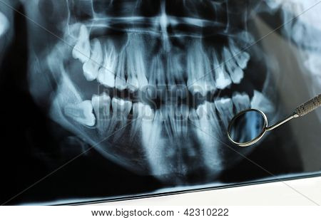 Dental X-ray Reflected In Dental Mirror
