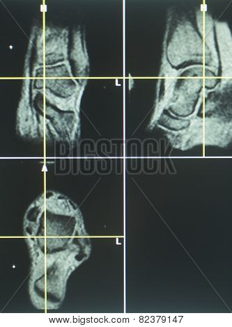 Human Knee Open Mri Ct Scan