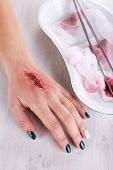 picture of pus  - Injured hand with blood on table in hospital - JPG