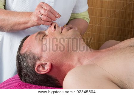 Acupuncturist Prepares To Tap Needle Around Face  Of Man