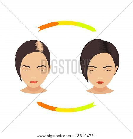 Woman with thinning hair before and after hair treatment and hair transplantation. Female pattern hair loss set. Hair care concept. Isolated vector illustration.