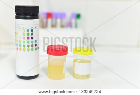 Check-up. Medical Report And Urine Test Strips