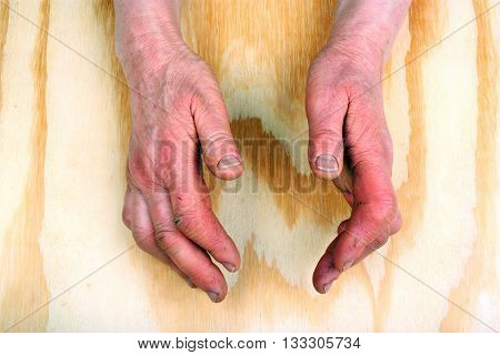 Arthritis Of The Hands