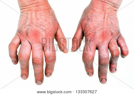 Closeup of woman hands with strong arthritis