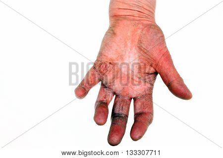 Arthritis Of The Hand