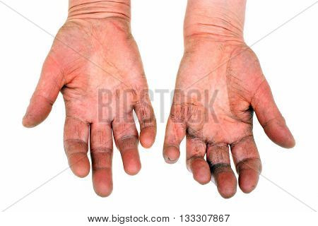 Rheumatoid arthritis deformed hands. Isolated white background