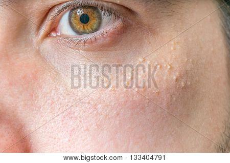 Milia (milium) - Pimples Around Eye On Skin.