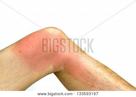 Sunburnt on skin around knee of man's left leg isolated on white background
