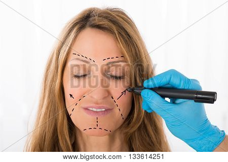 Close-up Of Surgeon Hands Drawing Correction Lines On Woman Face With Marker