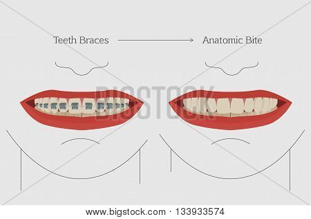 Anatomic bite concept. Medical educational image. Keep your teeth clean and healthy. Smiling female mouth with teeth and braces. Vector illustration. Orthodontic infographics