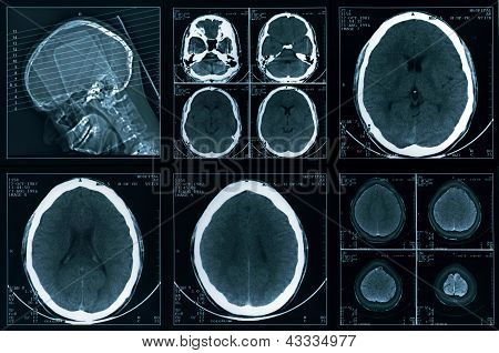 Computer head tomography