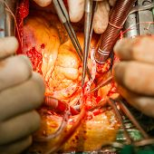 stock photo of coronary arteries  - Surgery - JPG