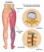 stock photo of lumbar spine  - medical illustration of symptoms of the sciatica - JPG