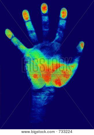 Hand Detection