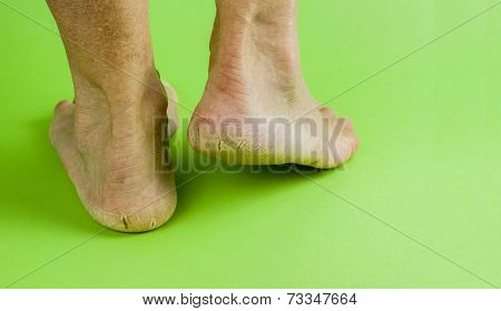 Cracked Heels On Green Background