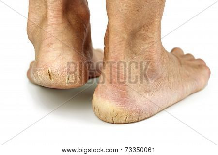 Cracked Heels On White Background