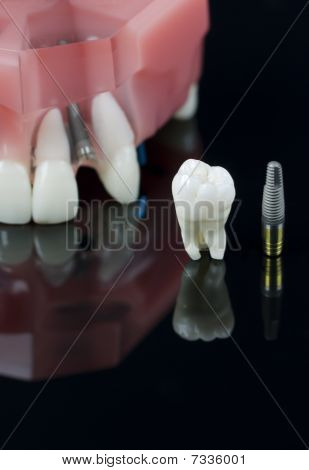 Real Human Wisdom Tooth, Implant Dental And Plastic Teeth Model. Shallow Depth Of Field