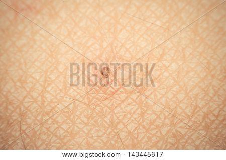 Macro Of Dry Skin Asia Human